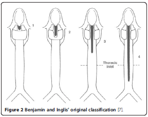 Laryngeal cleft types